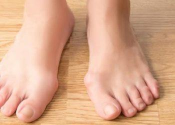ayak parmagi deformasyonu
