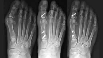 ayak basparmagi cikigi tedavisi