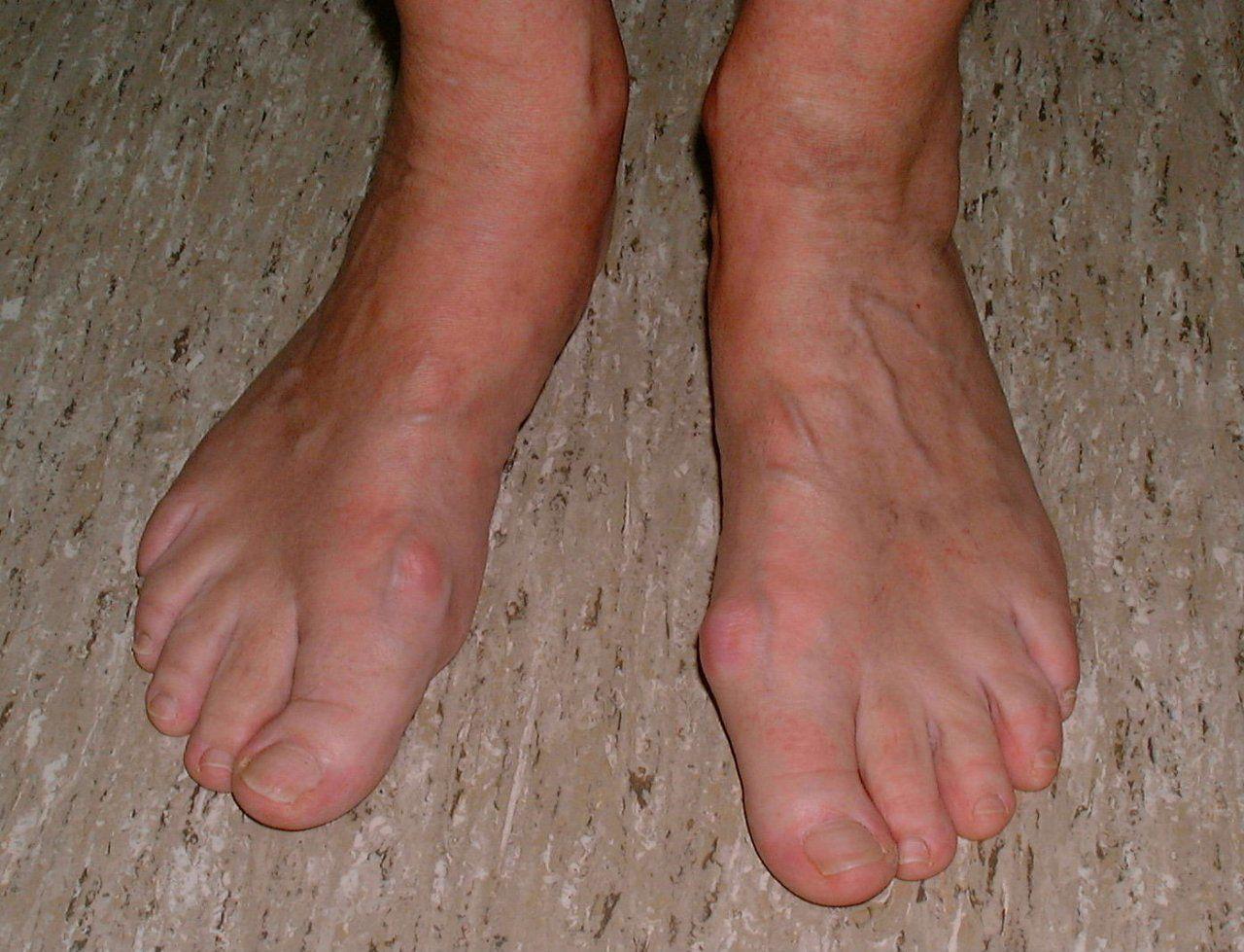 Düz valgus ayak nedir